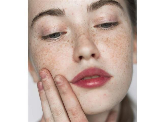چند روش کاربردی برای از بین بردن لکهای صورت