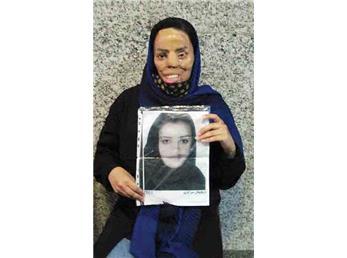 درخواست قربانی اسیدپاشی برای آزاد نشدن متهم