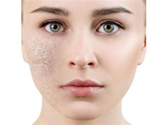 چطور از خشکی پوست در پاییز جلوگیری کنیم