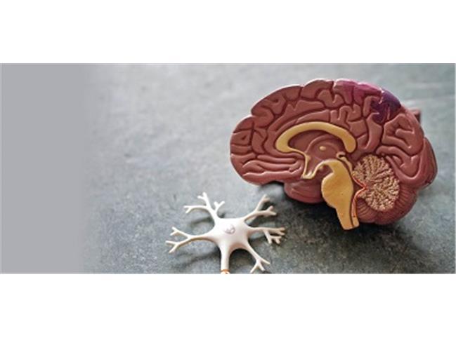 چه کنیم به آلزایمر مبتلا نشویم؟