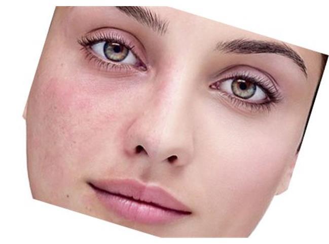 درمان خانگی لک صورت
